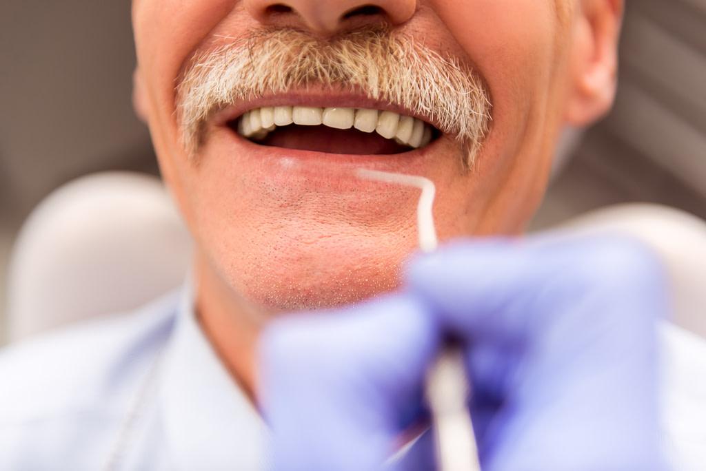 full mouth dental implants austin tx