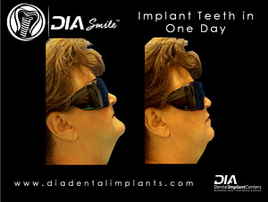 Before and After - Dental Implant Center
