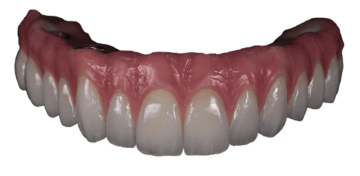 an implant supported denture