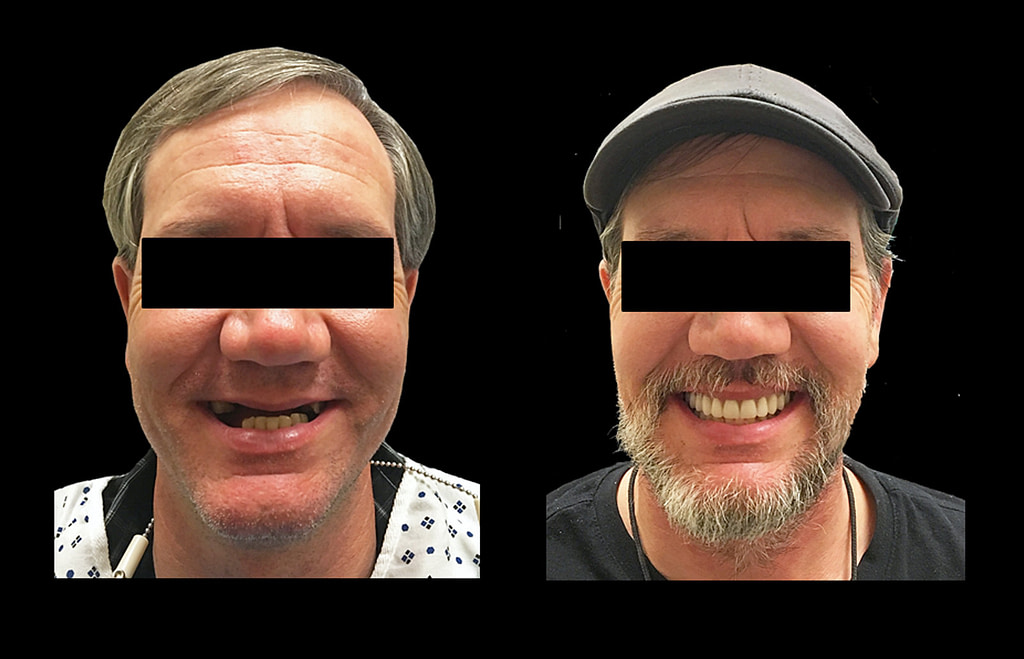 patient smiling before and after his full mouth dental implant procedure