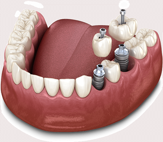 graphic of two dental implants being placed