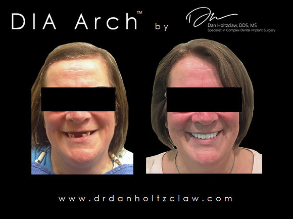 patient smiling before and after her full mouth dental implant procedure
