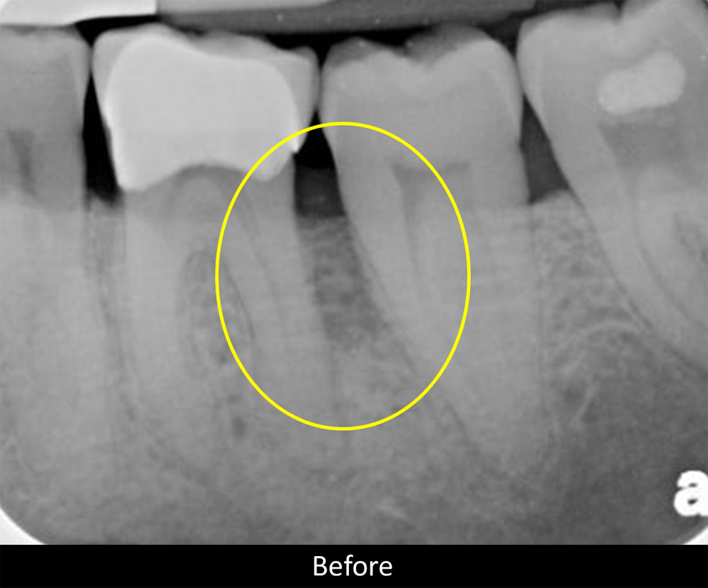 x-ray view of a periodontal pocket before undergoing treatment