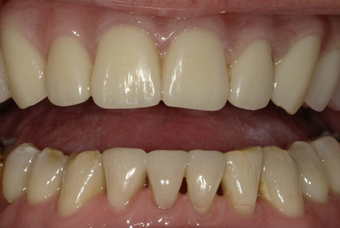 cosmetic bonding and hybrid denture after ALLEN, TX