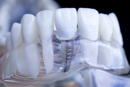 dental implant model ALLEN, TX