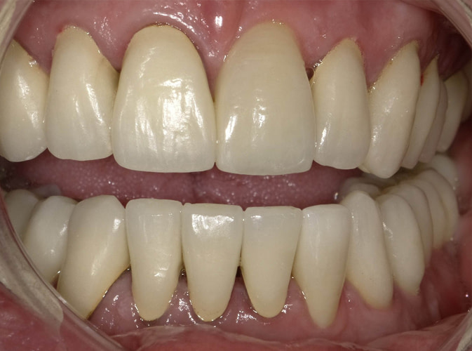 dental crown before and after ALLEN, TX
