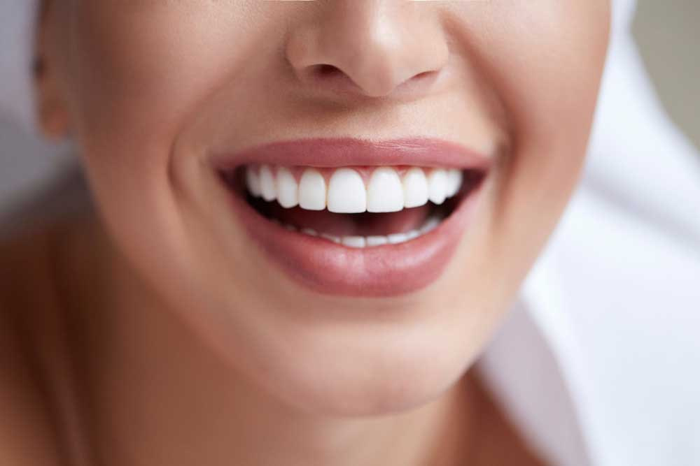patient smiling after her professional teeth whitening