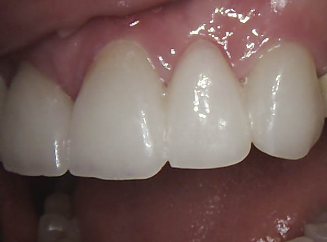 implant bridge after ALLEN, TX