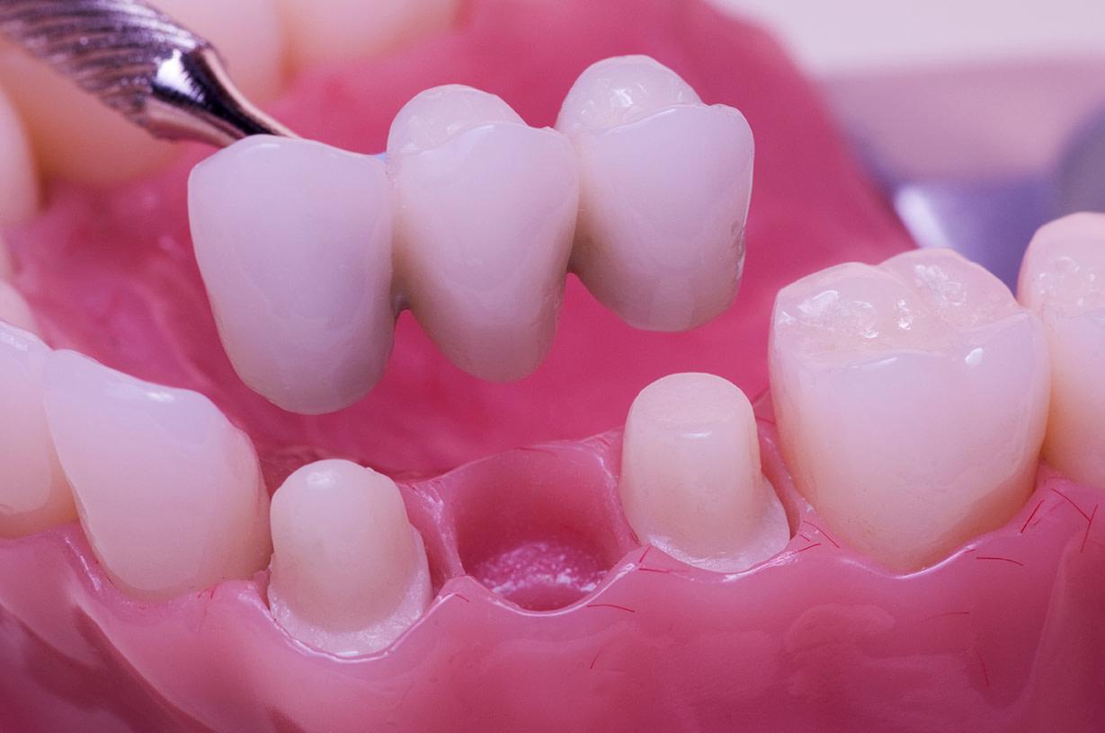 dental Bridge ALLEN, TX