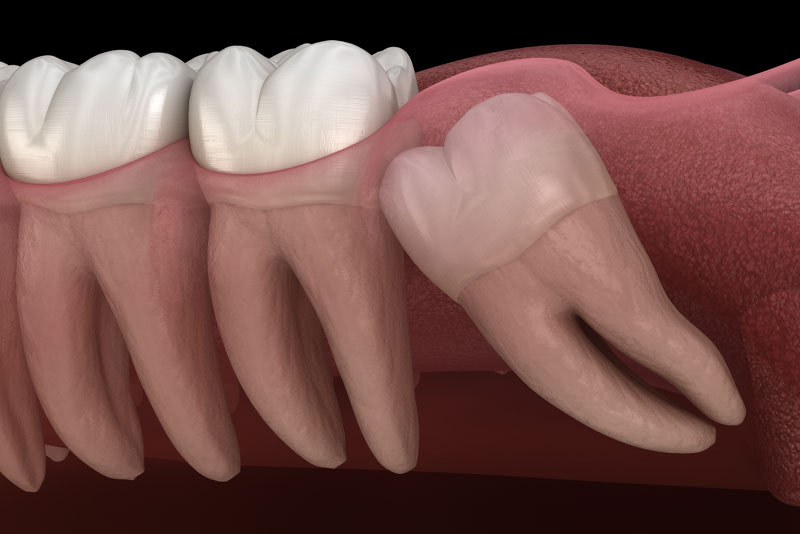 Impacted Wisdom Tooth Graphic