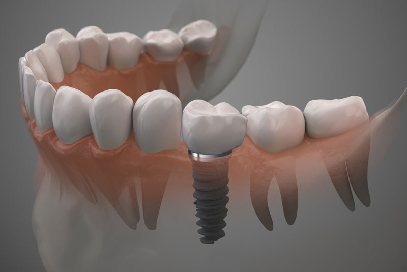 What Dental Implants Look Like In Your Mouth