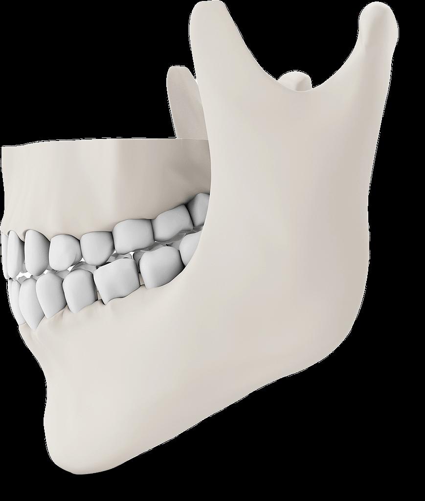 jaw bone model St. Johns, MI