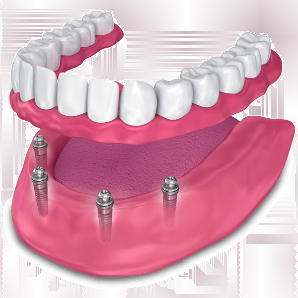 implant supported dentures model St. Johns, MI