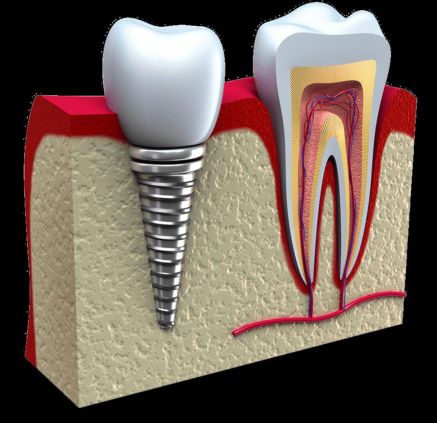 failing dental implant model St. Johns, MI