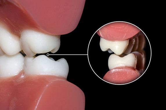 dental occlusion St. Johns, MI