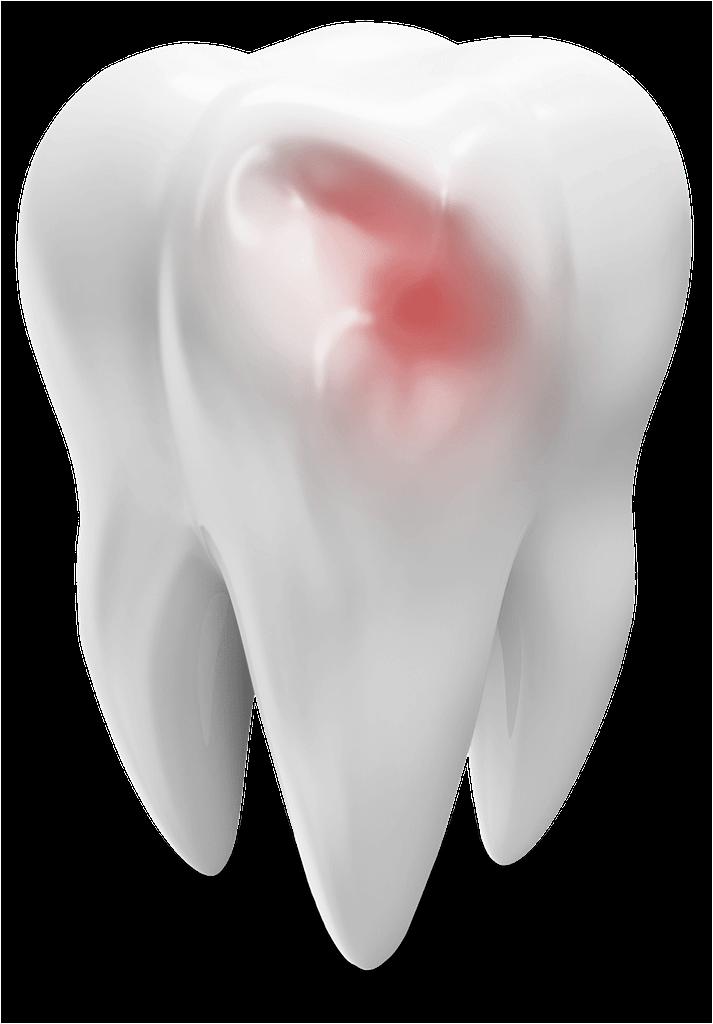 damaged tooth model St. Johns, MI