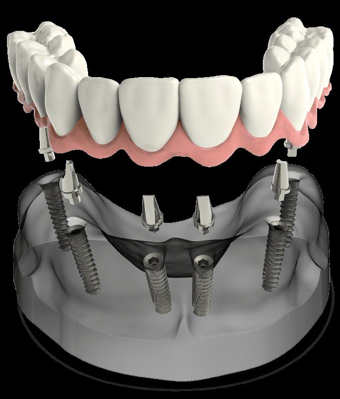 full arch dental implants model St. Johns, MI