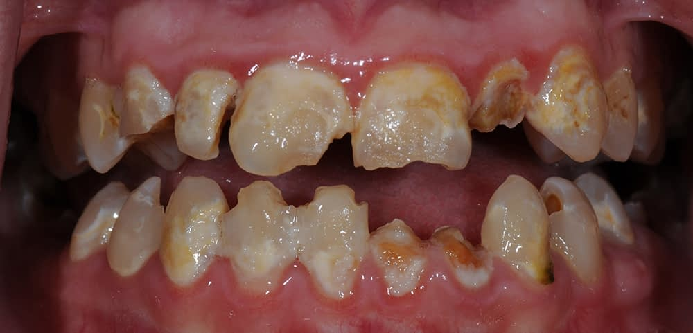 teeth before implant supported dentures