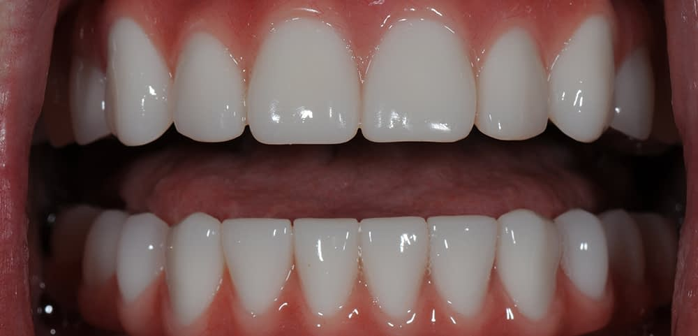smiling patient after implant supported dentures