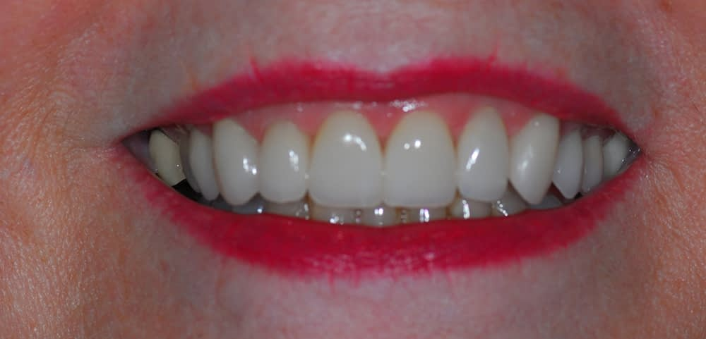 female smile after porcelain veneers
