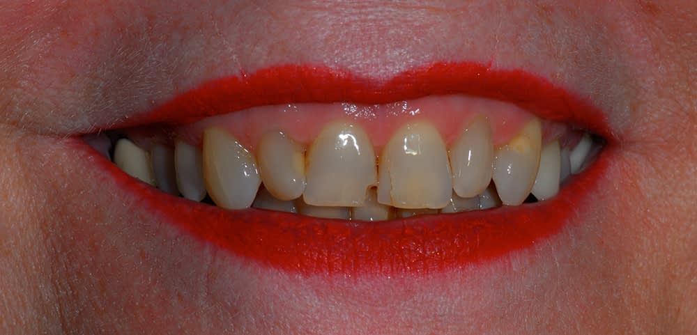 female patients smile before porcelain veneers