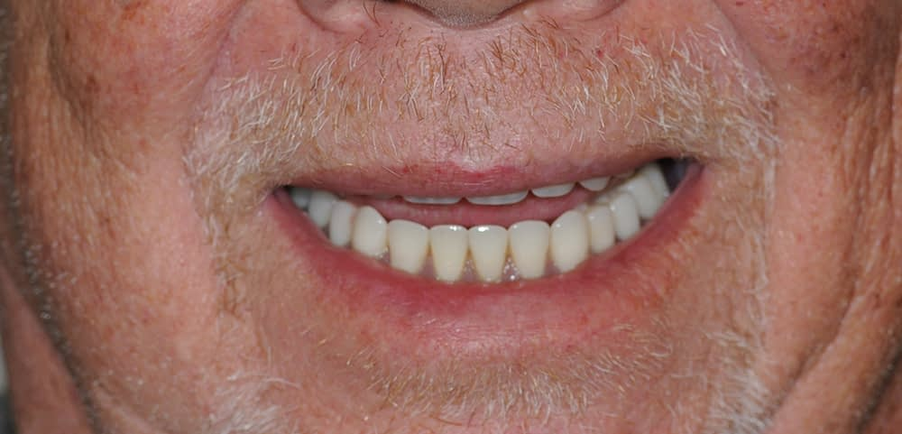 male patient smiling after stabiliteeth procedure