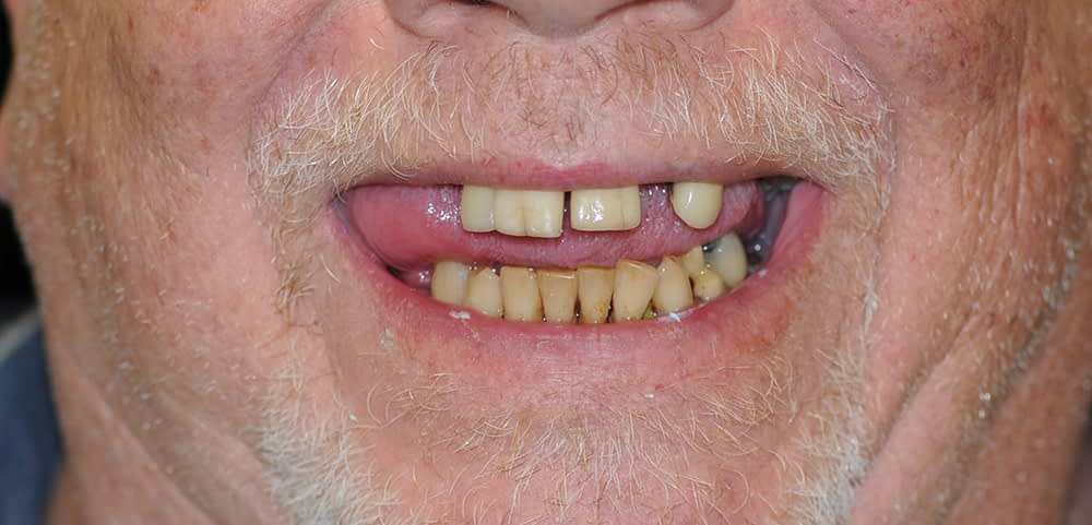 male patient smiling before upper stabiliteeth