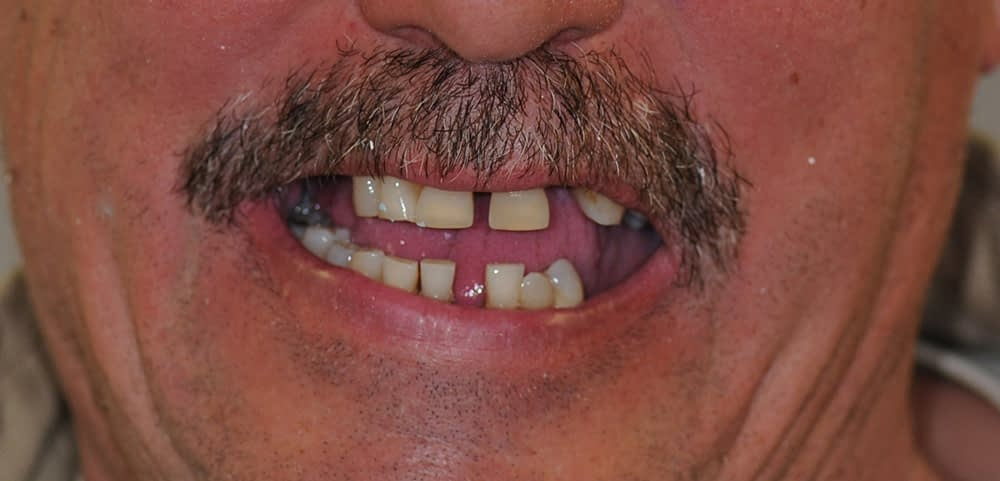 male patient smiling before teethxpress dental implants