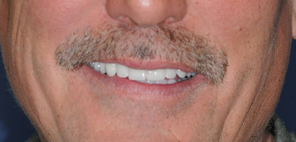 male patient smiling with upper stabiliteeth