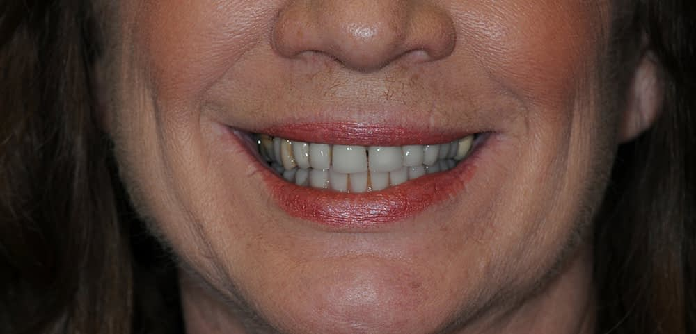 woman smiling after teethxpress dental implants