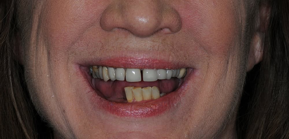 woman smiling before teethxpress dental implants