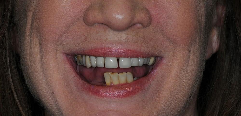 woman smiling before teethxpress dental implants