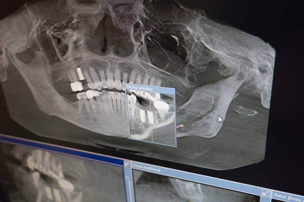holistic dentistry Woodbury, MN