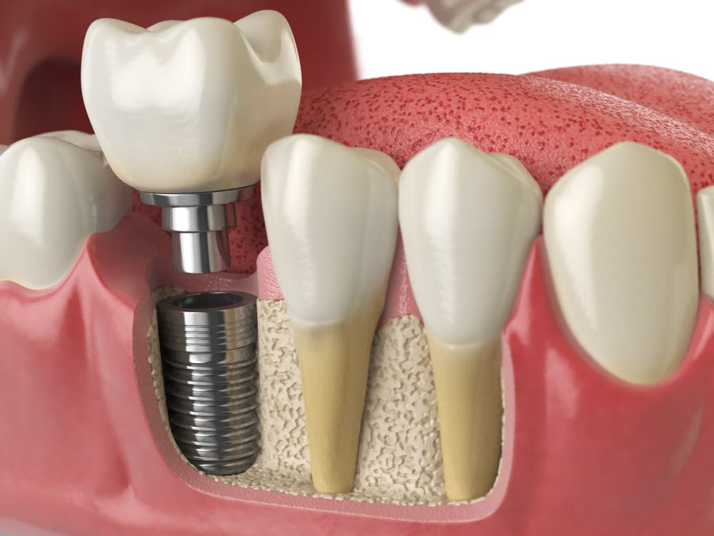Dental Implant Bone Grafting and Growth