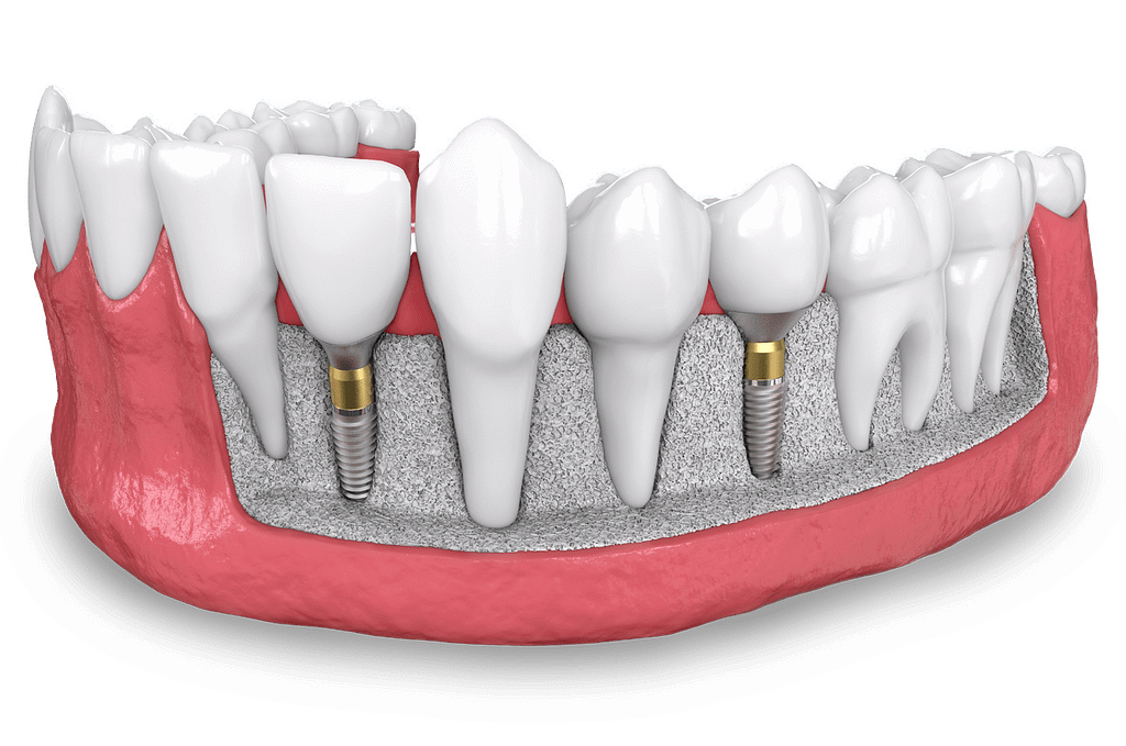 dental implant model MONTCLAIR, NJ
