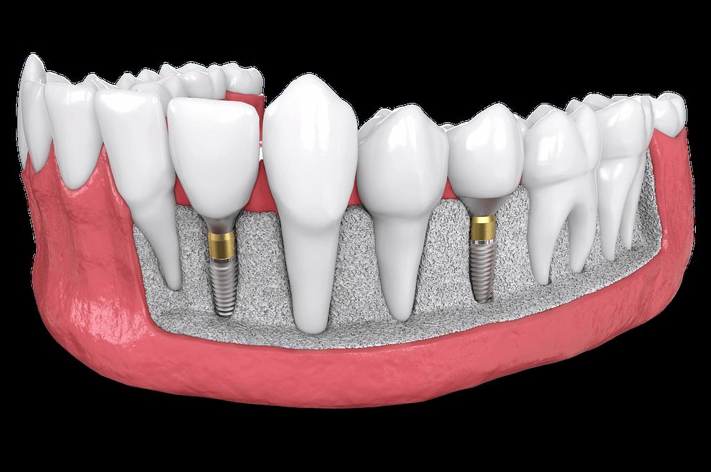 dental implant model St. Johns, MI