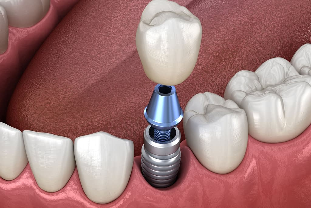 dental implant model Dana Point CA