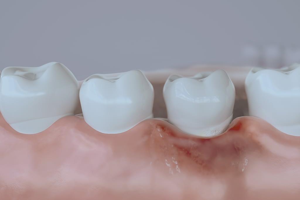 advanced periodontal disease illustration