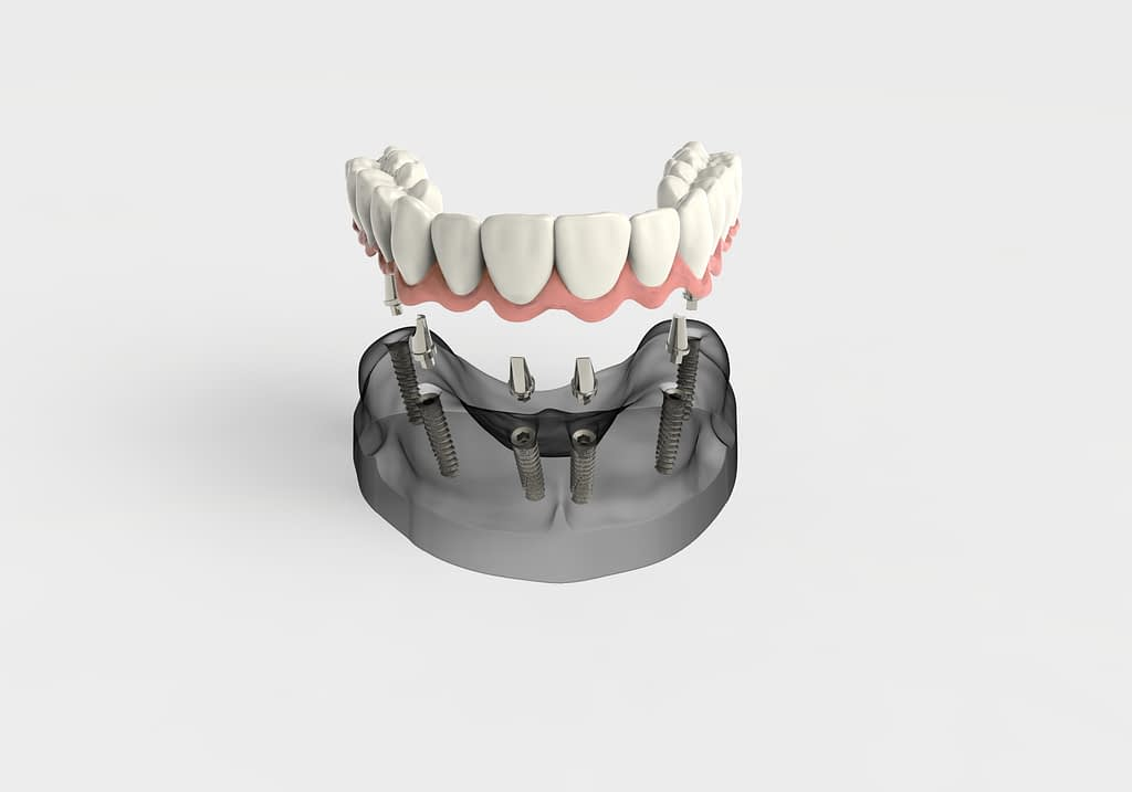 full arch dental implants dana point ca