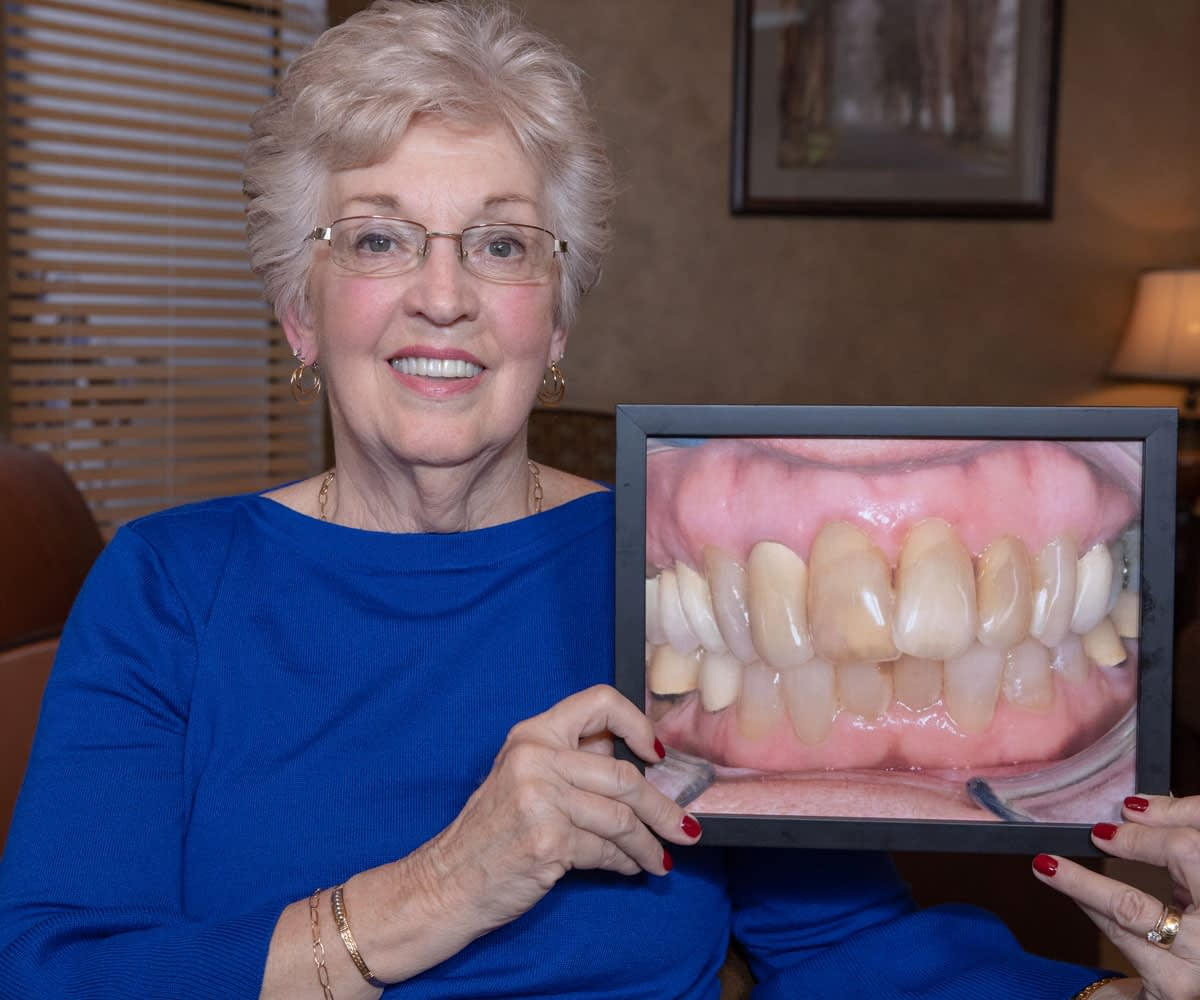 full arch dental implants patient smiling after procedure Tavares, FL