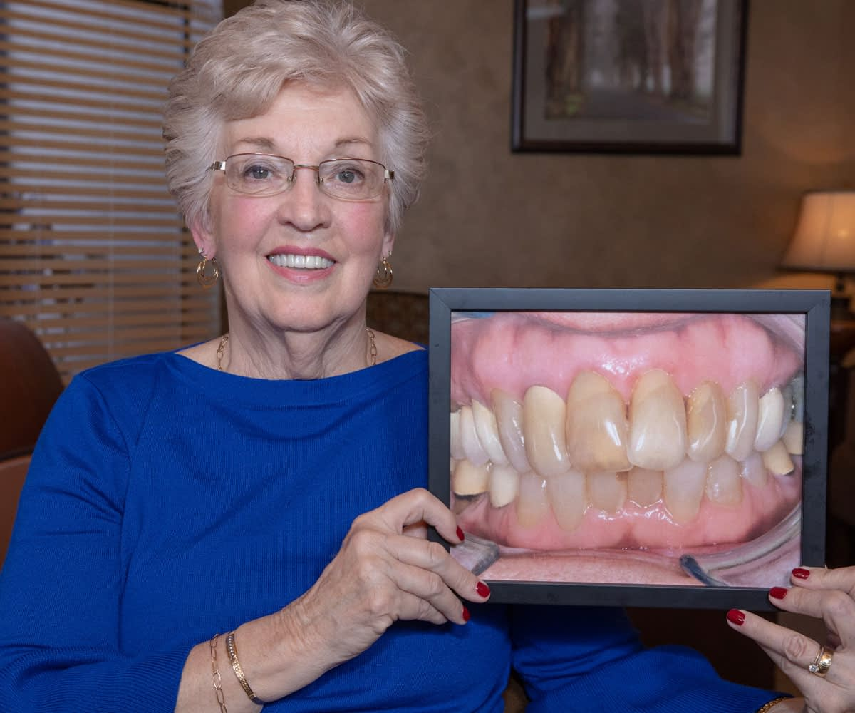 full mouth reconstruction patient smiling Tavares, FL