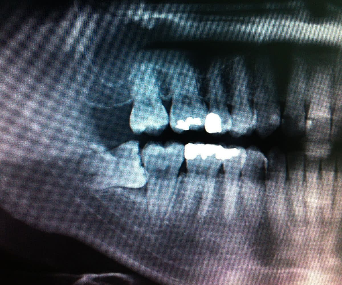 impacted tooth xray Tavares, FL