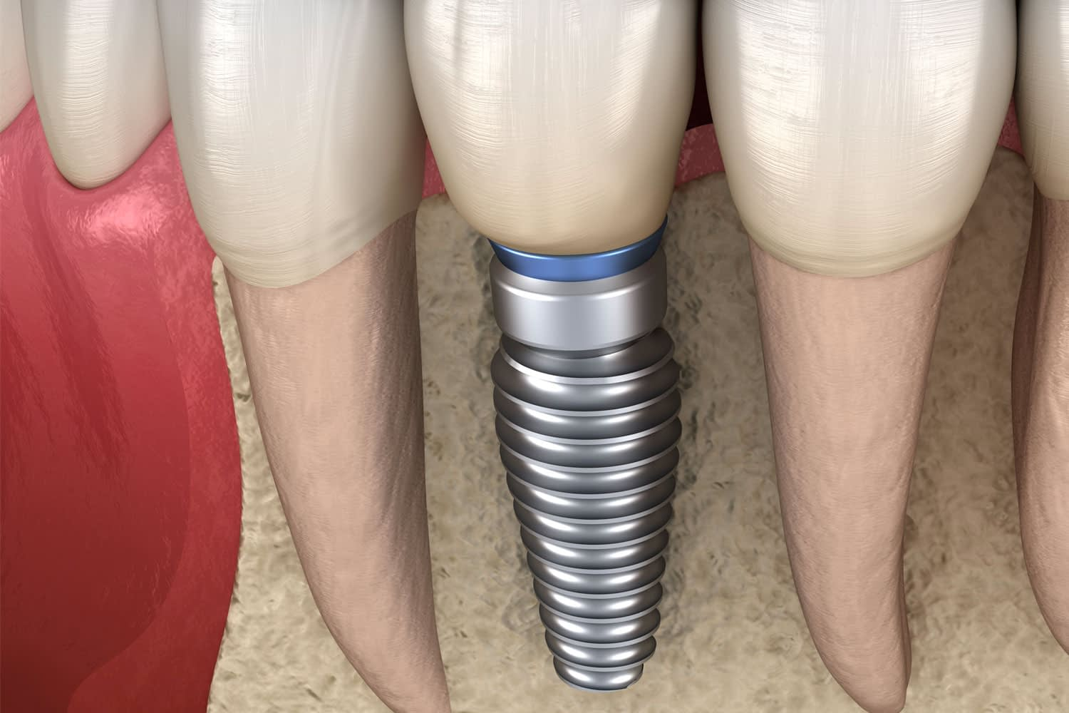 dental implant model Tavares, FL