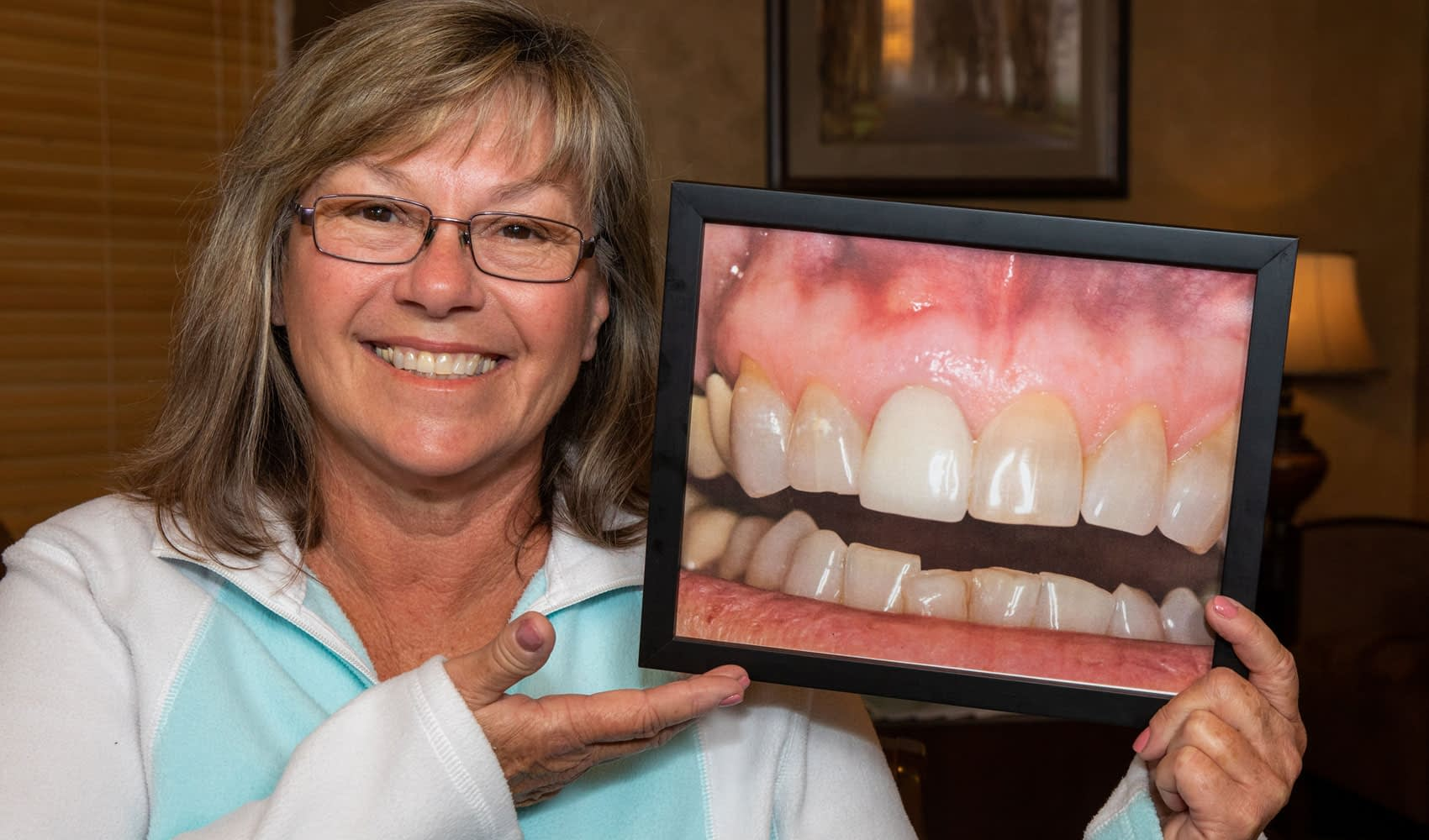 dental implants patient smiling Tavares, FL
