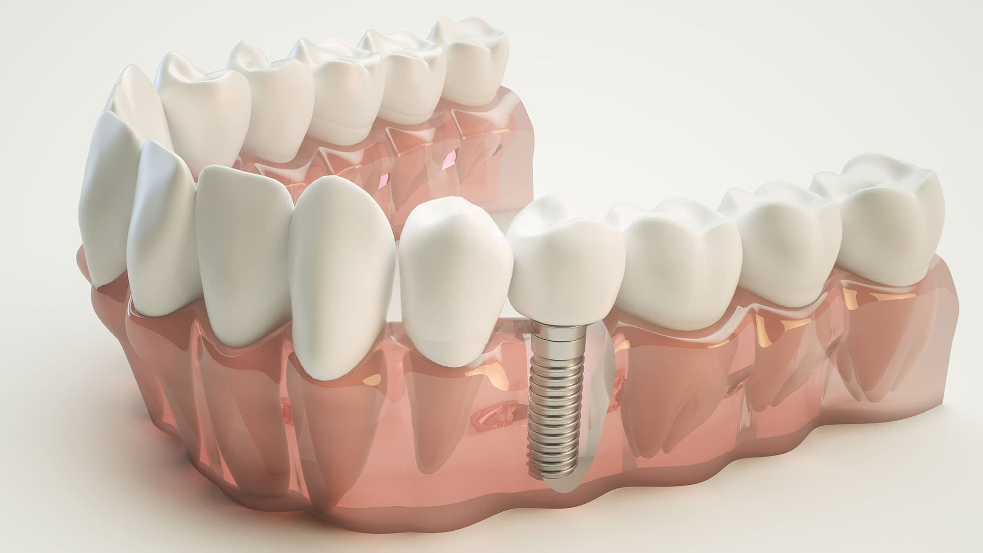Dental Implant Van Nuys, CA