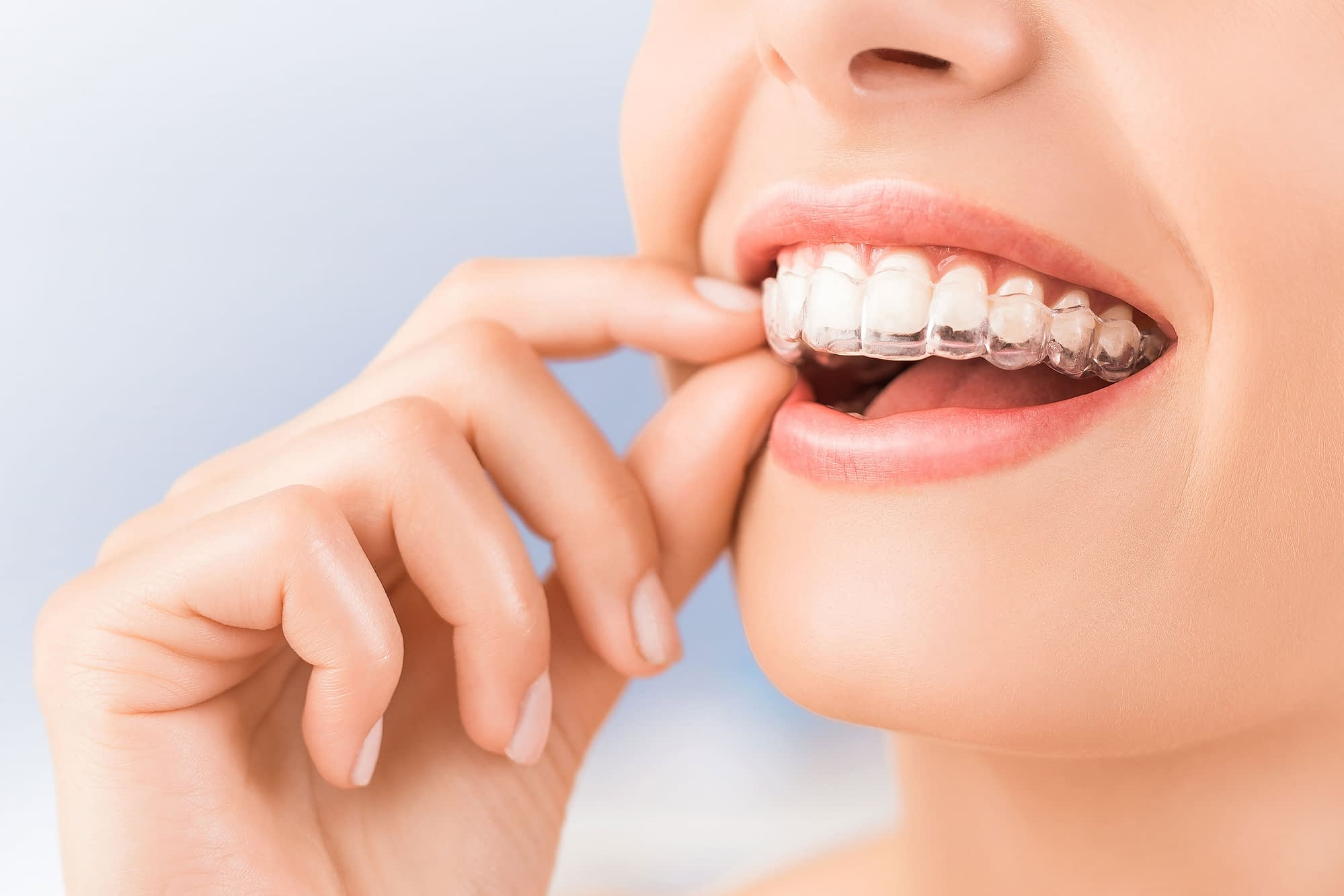 about invisalign Van Nuys, CA