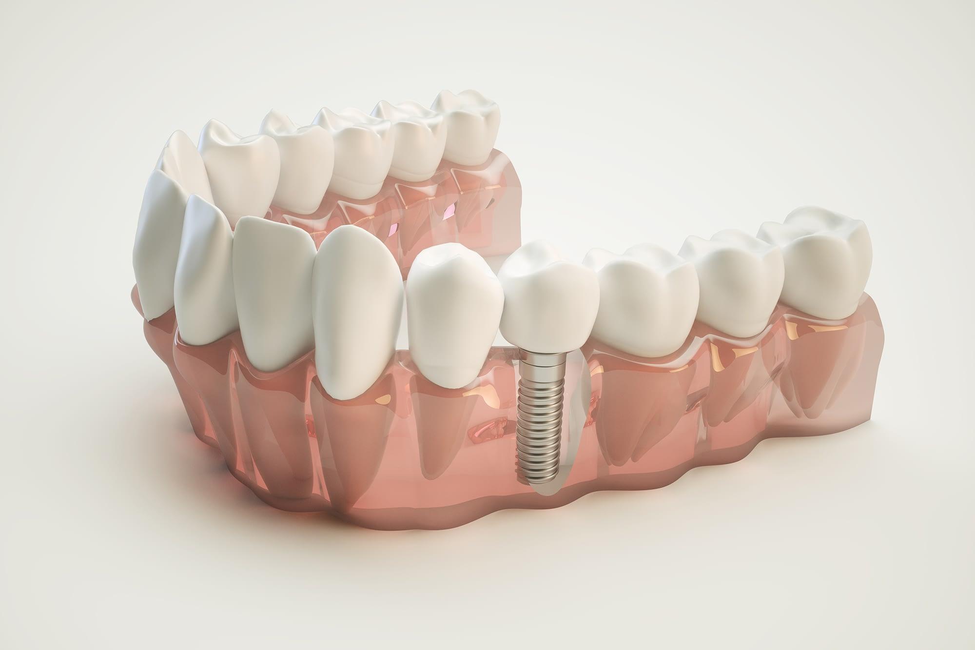 Dental Implants - Charleston, SC
