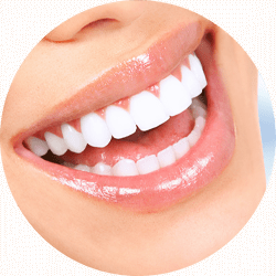 teeth whitening patient