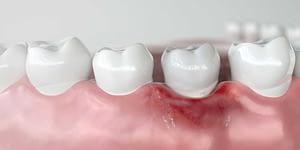 model portraying receding gums