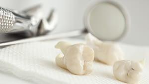 tooth extraction ALLEN, TX